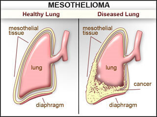 What is mesothelioma And Stages Of Mesothelioma