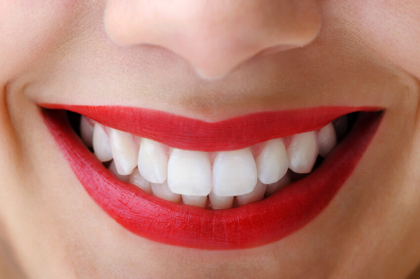 How Whiten Teeth Naturally In Minutes Amazing Health Tips